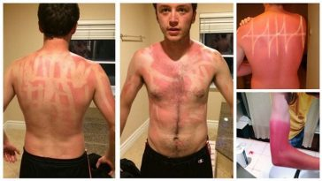 16 Horribly Hilarious Sunburns That Will Make You Want To Slather On The SPF