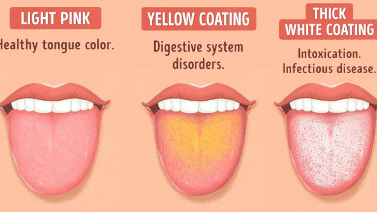 Warnings Your Tongue Is Trying To Tell You About Your Health